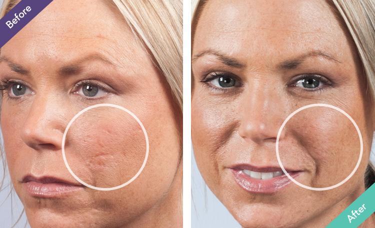 dermaflage - acne scars