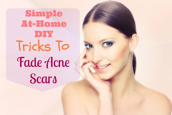 how-to-fade-acne-scars