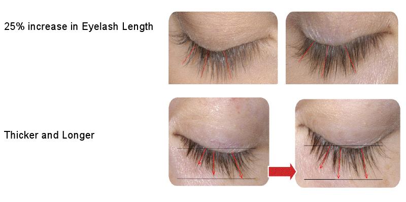 Best Eyelash Growth Enhancement Treatment Serum That Works Fast