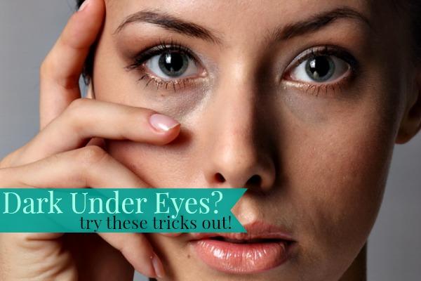 black-under-eyes